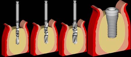 Inbrengen van de implantaten