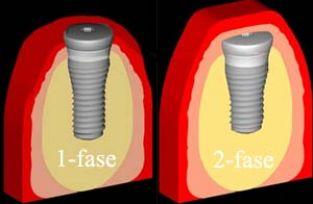Links 1-faseinheling en rechts 2-faseinheling