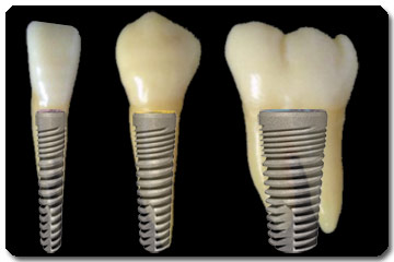 Implantaat diameters