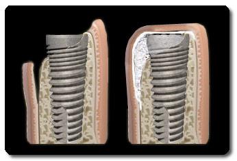 Implantaat met bot opbouw