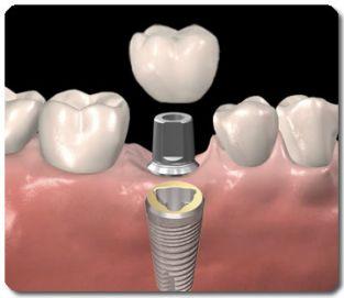Implantaat voor enkeltands vervanging