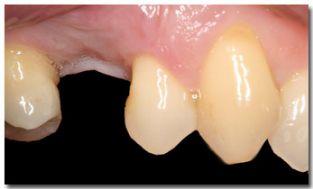 Kroon op implantaat